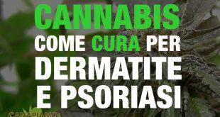 Dermatite e psoriasi: La Cannabis 'nuova' cura